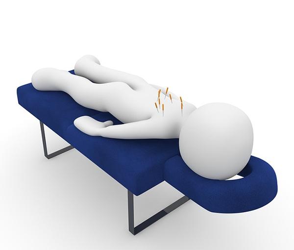 body_acupuncture.jpg
